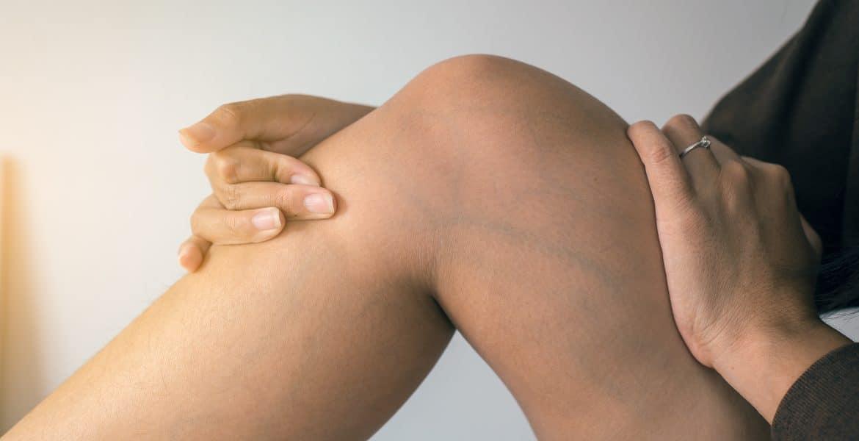 visszeres bőrelváltozások és kezelés